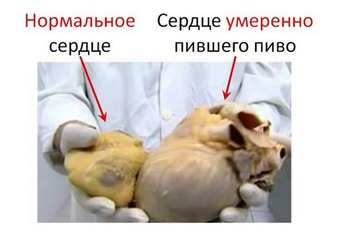 http://img.zzweb.ru/img/751178/5.jpg